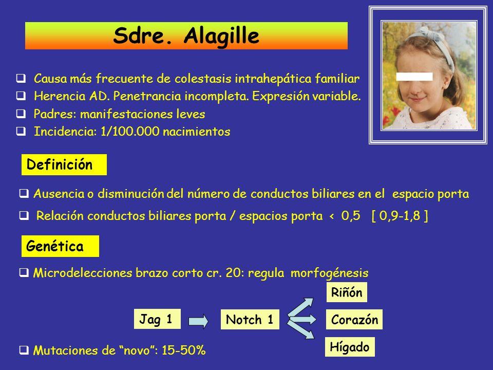 Sdre. Alagille Definición Genética