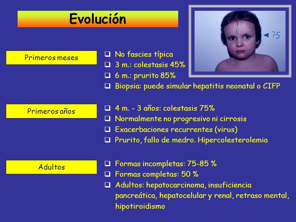 Evolución No fascies típica Primeros meses 3 m.: colestasis 45%