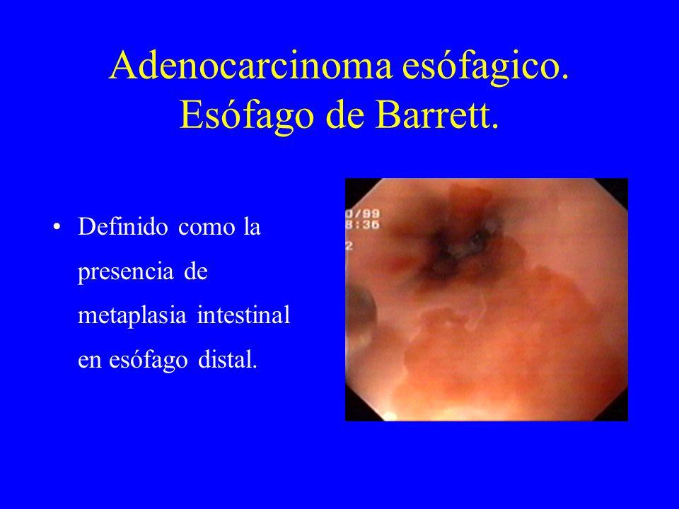 Adenocarcinoma esófagico. Esófago de Barrett.