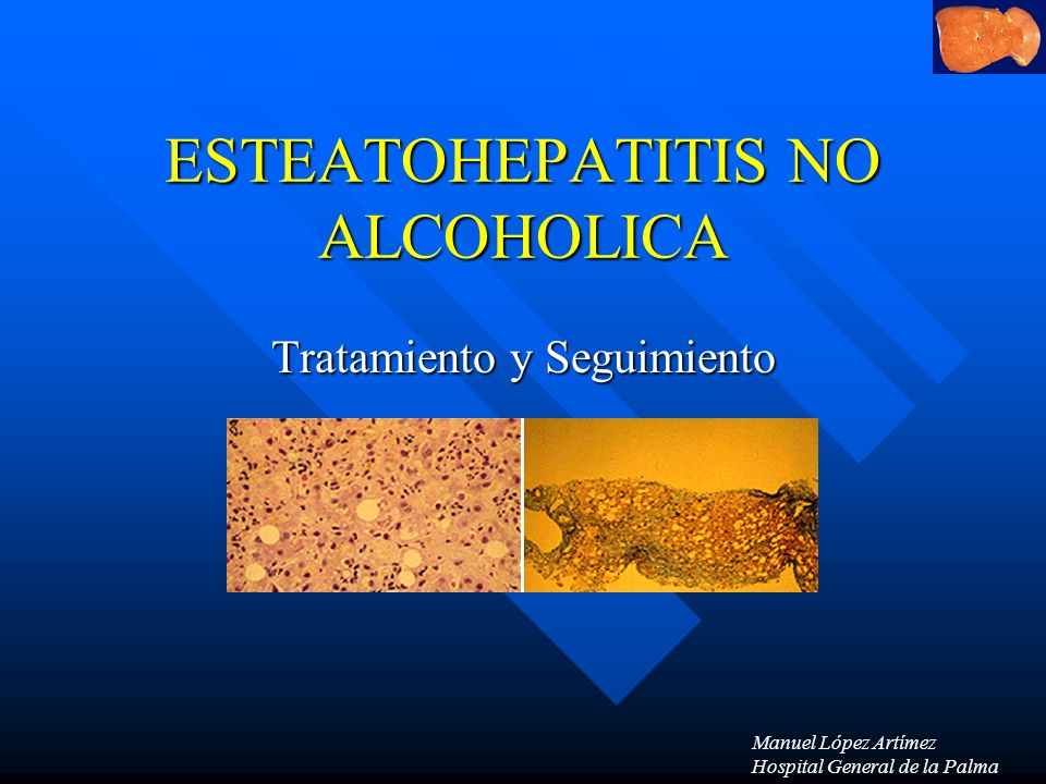 ESTEATOHEPATITIS NO ALCOHOLICA