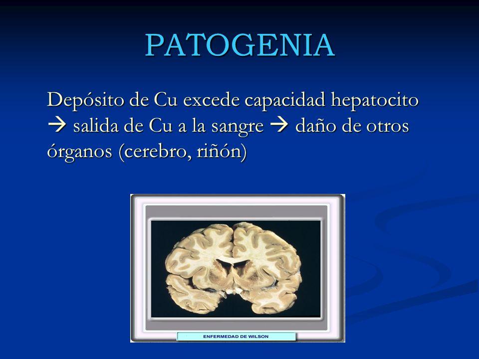PATOGENIA Depósito de Cu excede capacidad hepatocito  salida de Cu a la sangre  daño de otros órganos (cerebro, riñón)