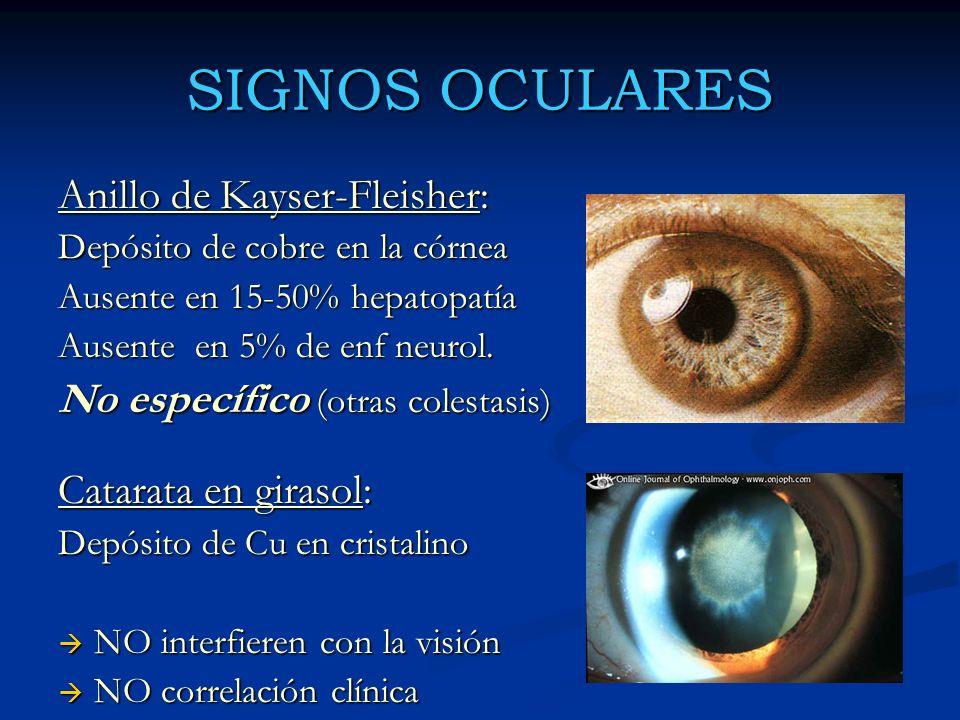 SIGNOS OCULARES Anillo de Kayser-Fleisher: