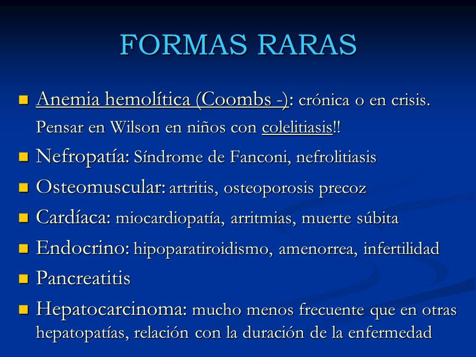 FORMAS RARAS Anemia hemolítica (Coombs -): crónica o en crisis.