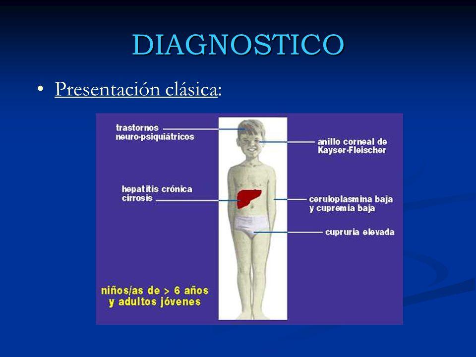 DIAGNOSTICO Presentación clásica: