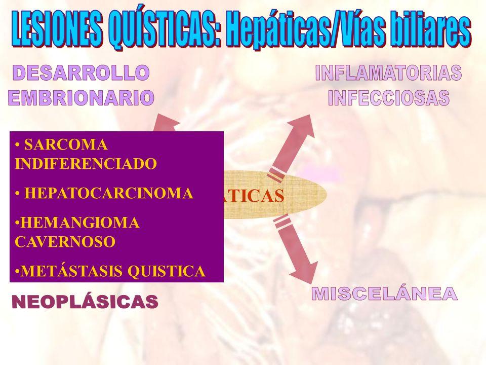 LESIONES QUÍSTICAS: Hepáticas/Vías biliares