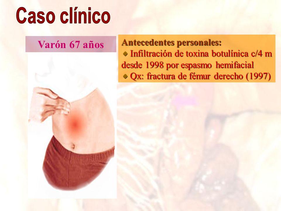 Caso clínico Varón 67 años Antecedentes personales: