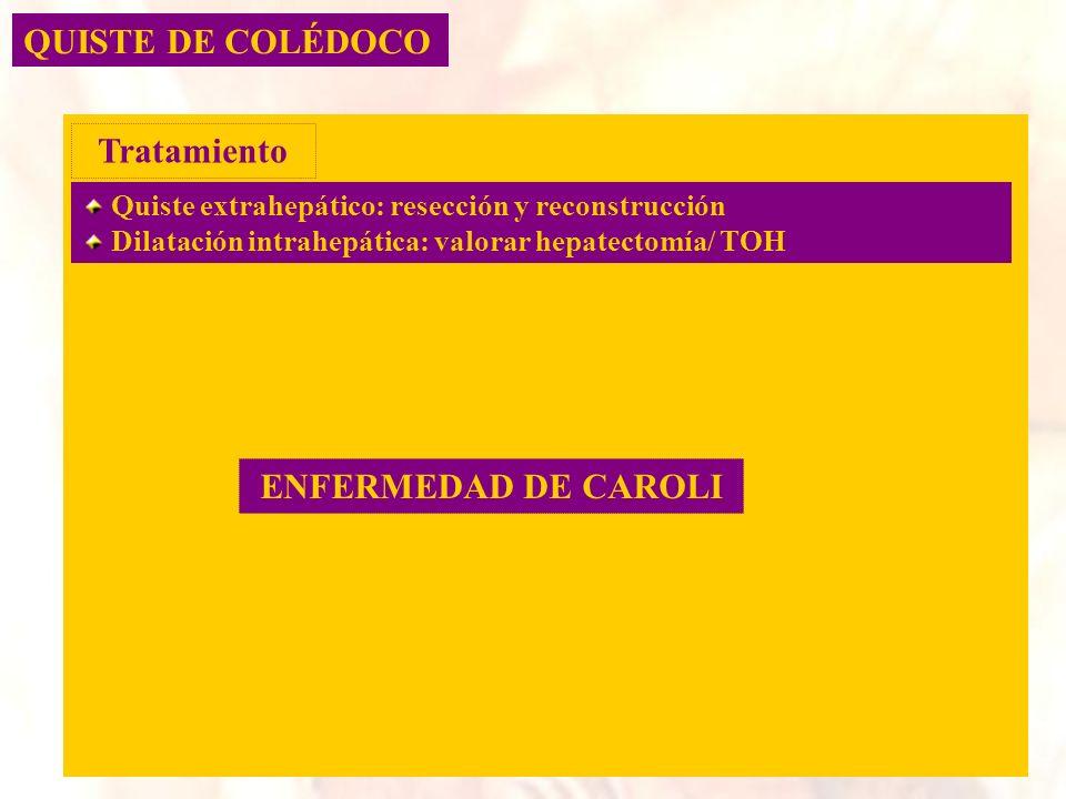 Tratamiento ENFERMEDAD DE CAROLI
