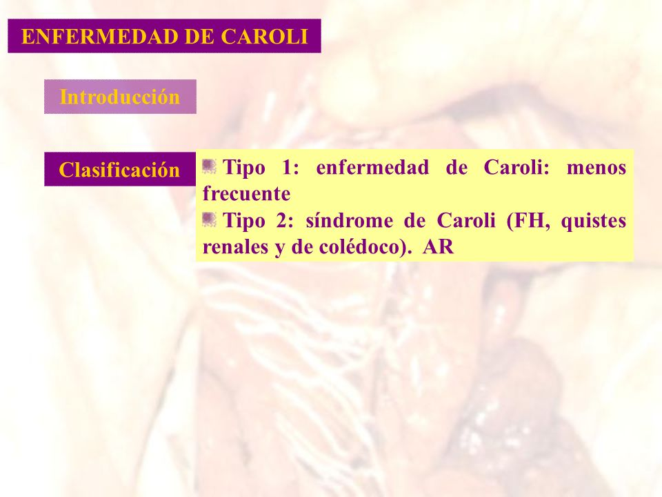 ENFERMEDAD DE CAROLI Introducción. Clasificación. Tipo 1: enfermedad de Caroli: menos frecuente.