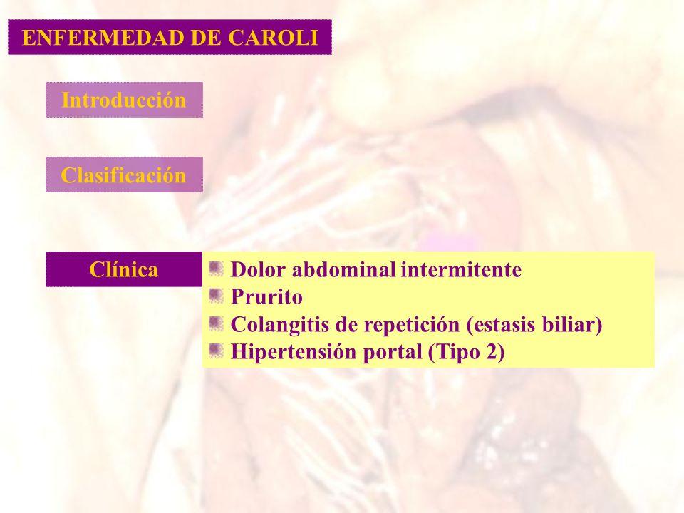 ENFERMEDAD DE CAROLI Introducción. Clasificación. Clínica. Dolor abdominal intermitente. Prurito.