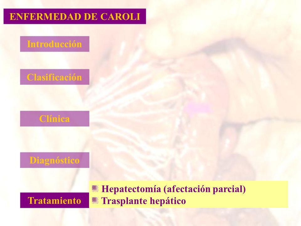 ENFERMEDAD DE CAROLI Introducción. Clasificación. Clínica. Diagnóstico. Hepatectomía (afectación parcial)