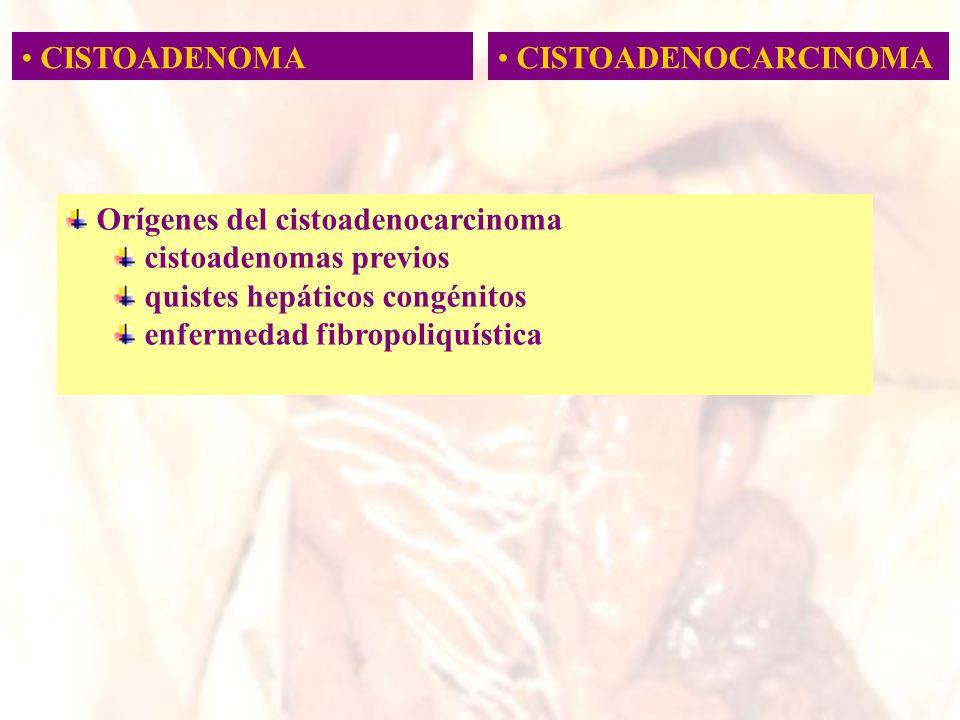 CISTOADENOMA CISTOADENOCARCINOMA. Orígenes del cistoadenocarcinoma. cistoadenomas previos. quistes hepáticos congénitos.