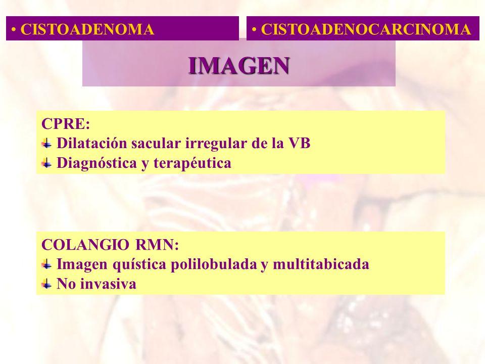 IMAGEN CISTOADENOMA CISTOADENOCARCINOMA CPRE: