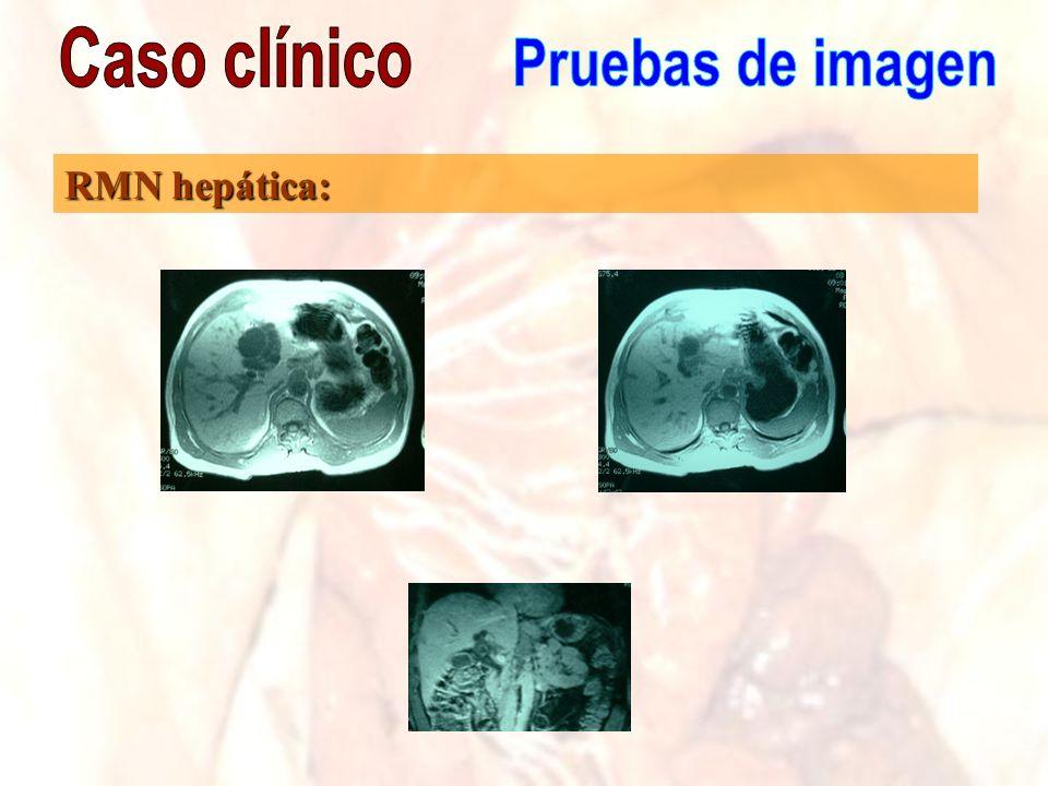 Caso clínico Pruebas de imagen