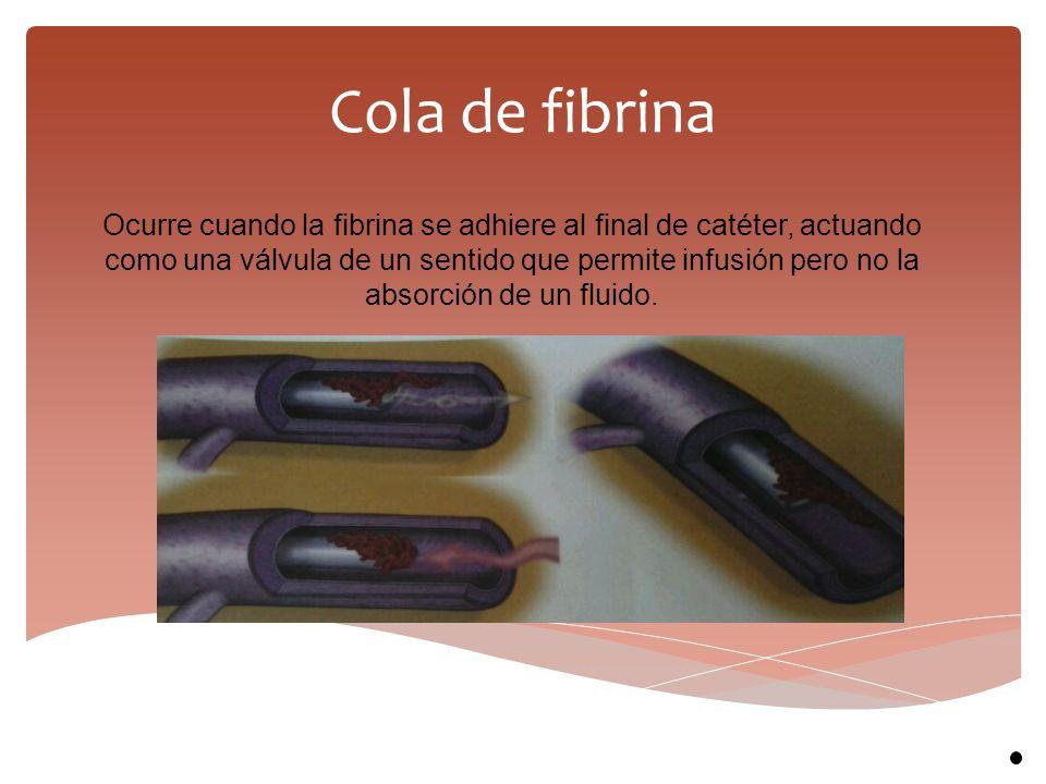 Cola de fibrina