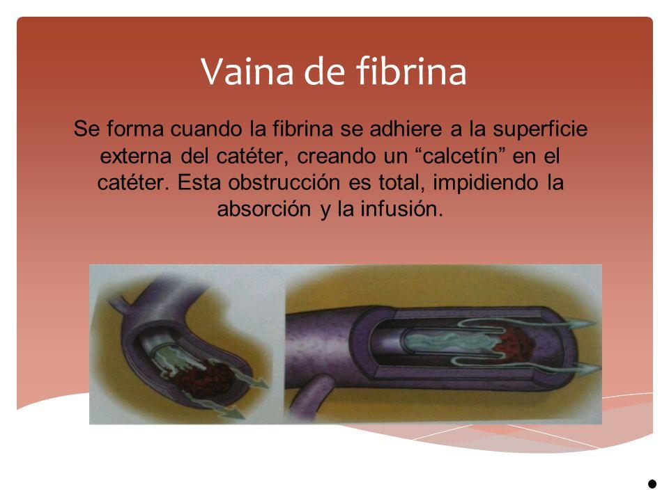 Vaina de fibrina