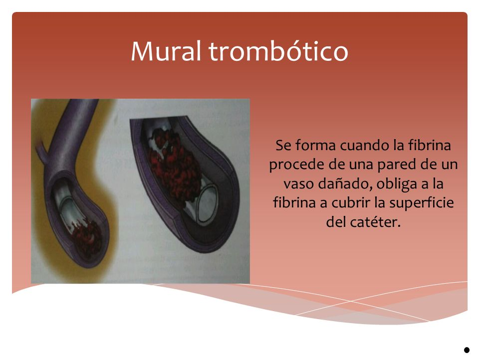 Mural trombótico Se forma cuando la fibrina procede de una pared de un vaso dañado, obliga a la fibrina a cubrir la superficie del catéter.