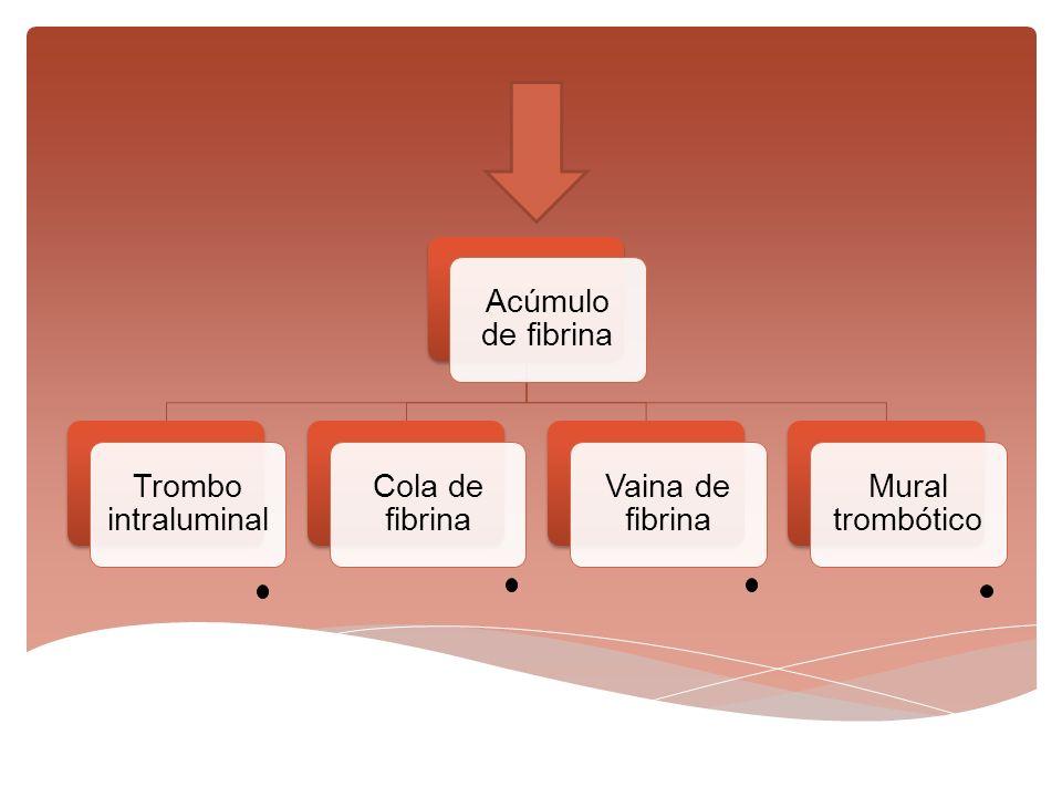 Acúmulo de fibrina Trombo intraluminal Cola de fibrina Vaina de fibrina Mural trombótico