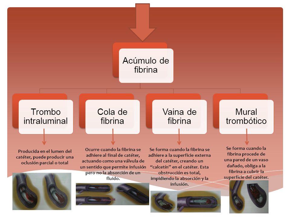 Acúmulo de fibrina Trombo intraluminal Cola de fibrina