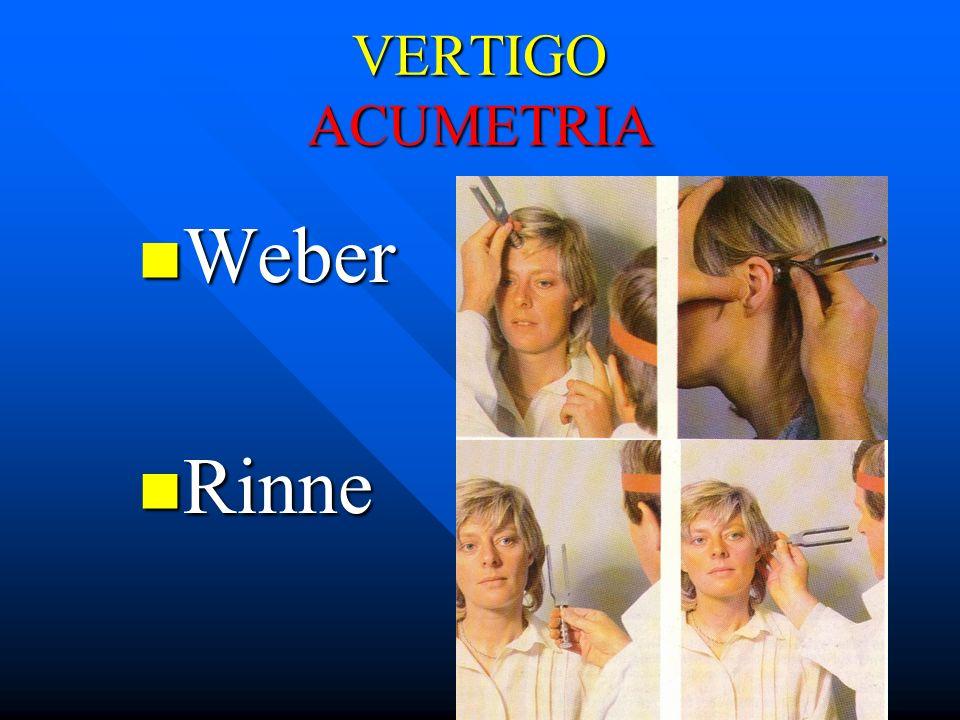 VERTIGO ACUMETRIA Weber Rinne