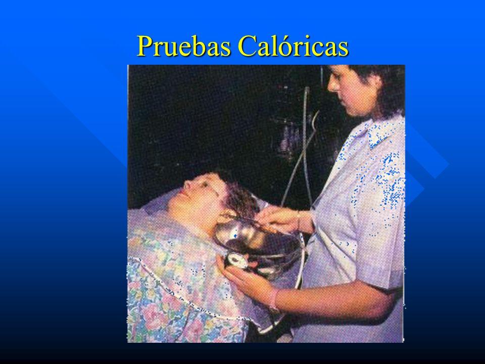 Pruebas Calóricas