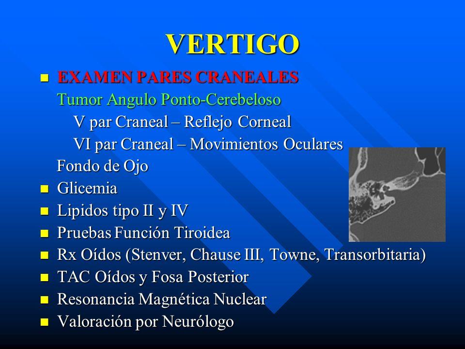VERTIGO EXAMEN PARES CRANEALES Tumor Angulo Ponto-Cerebeloso