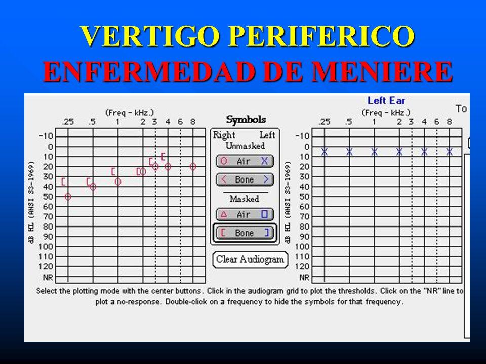 VERTIGO PERIFERICO ENFERMEDAD DE MENIERE