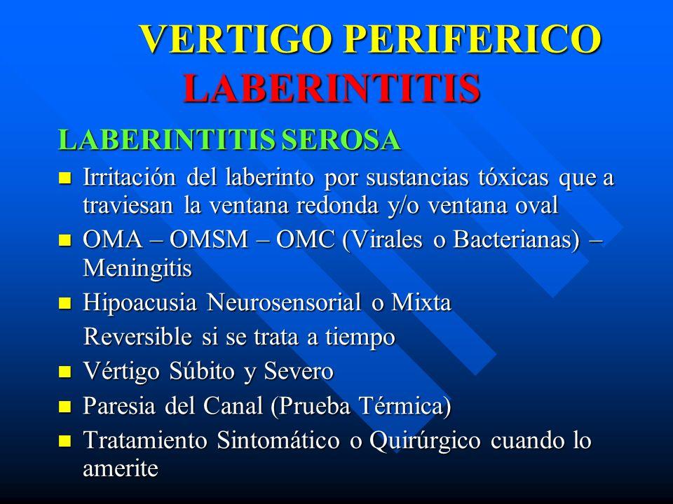 VERTIGO PERIFERICO LABERINTITIS