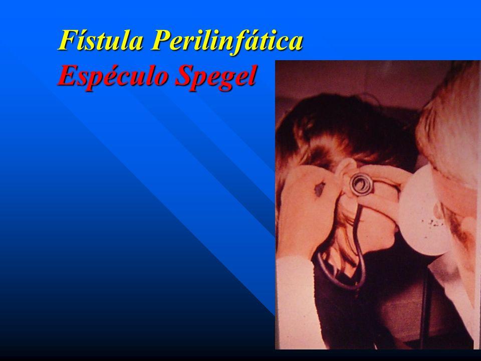 Fístula Perilinfática Espéculo Spegel