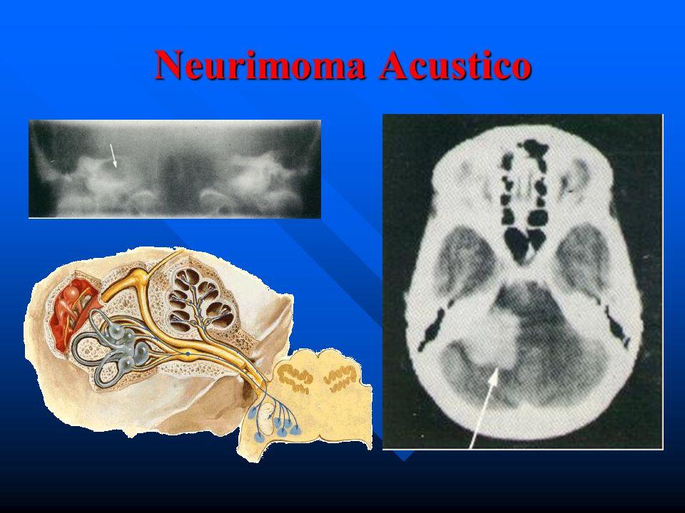 Neurimoma Acustico