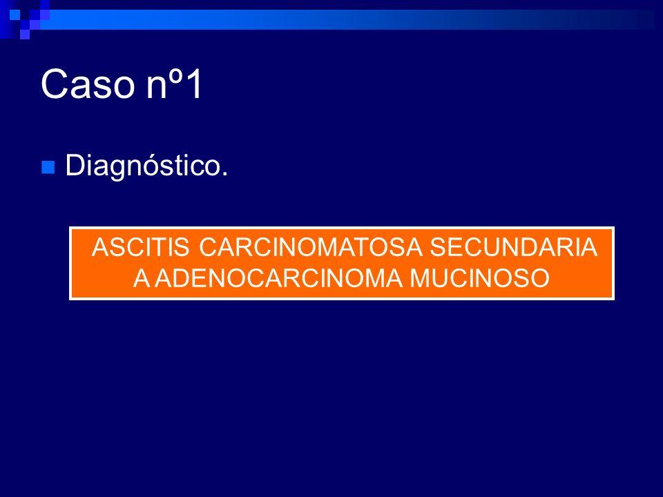 ASCITIS CARCINOMATOSA SECUNDARIA A ADENOCARCINOMA MUCINOSO