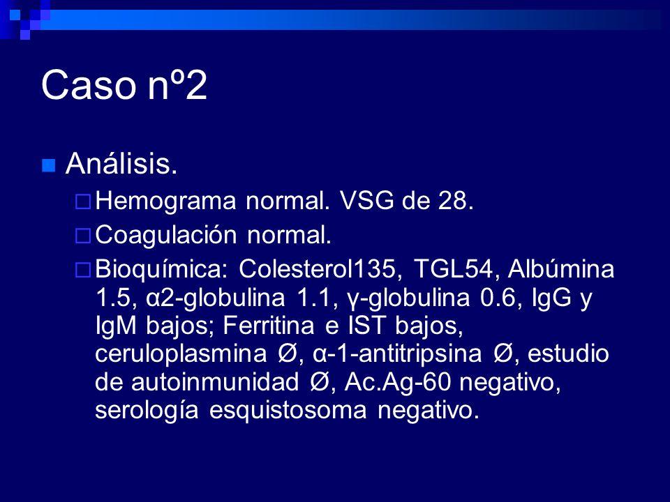 Caso nº2 Análisis. Hemograma normal. VSG de 28. Coagulación normal.