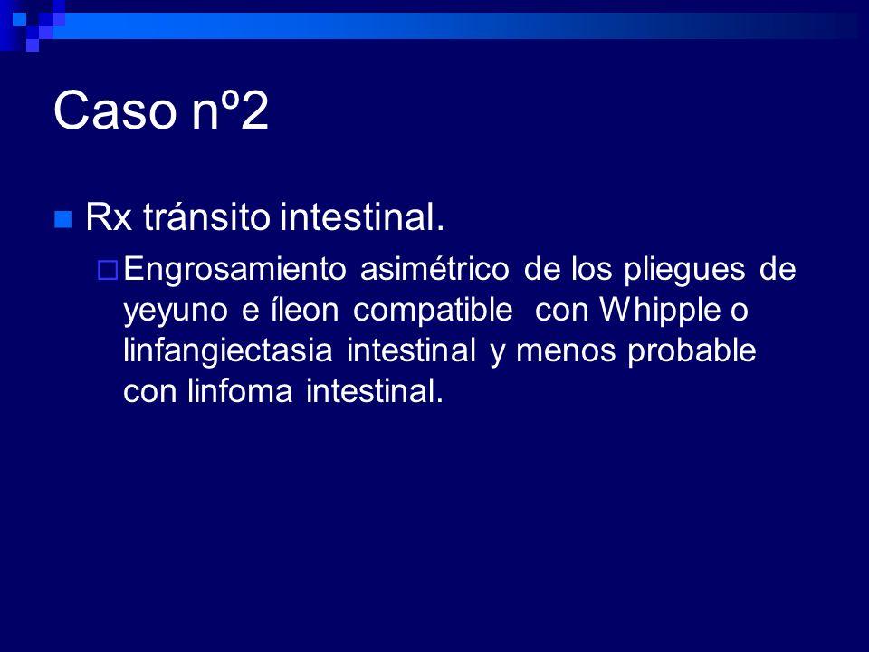 Caso nº2 Rx tránsito intestinal.