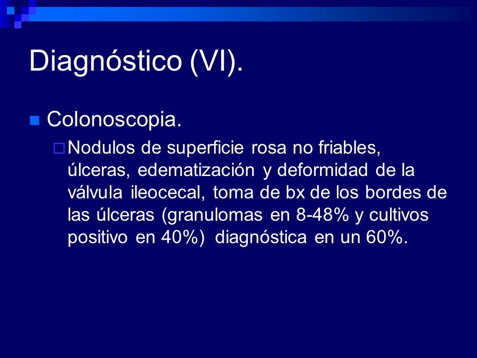 Diagnóstico (VI). Colonoscopia.