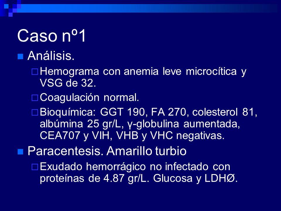 Caso nº1 Análisis. Paracentesis. Amarillo turbio
