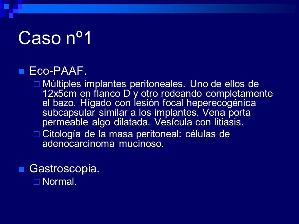 Caso nº1 Eco-PAAF. Gastroscopia.