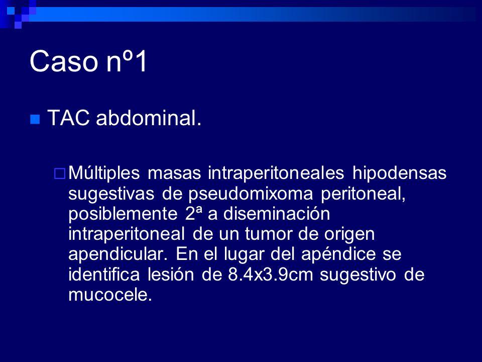 Caso nº1 TAC abdominal.