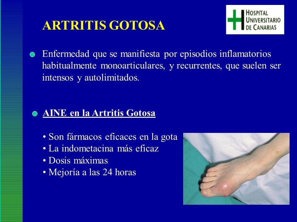 ARTRITIS GOTOSA Enfermedad que se manifiesta por episodios inflamatorios. habitualmente monoarticulares, y recurrentes, que suelen ser.