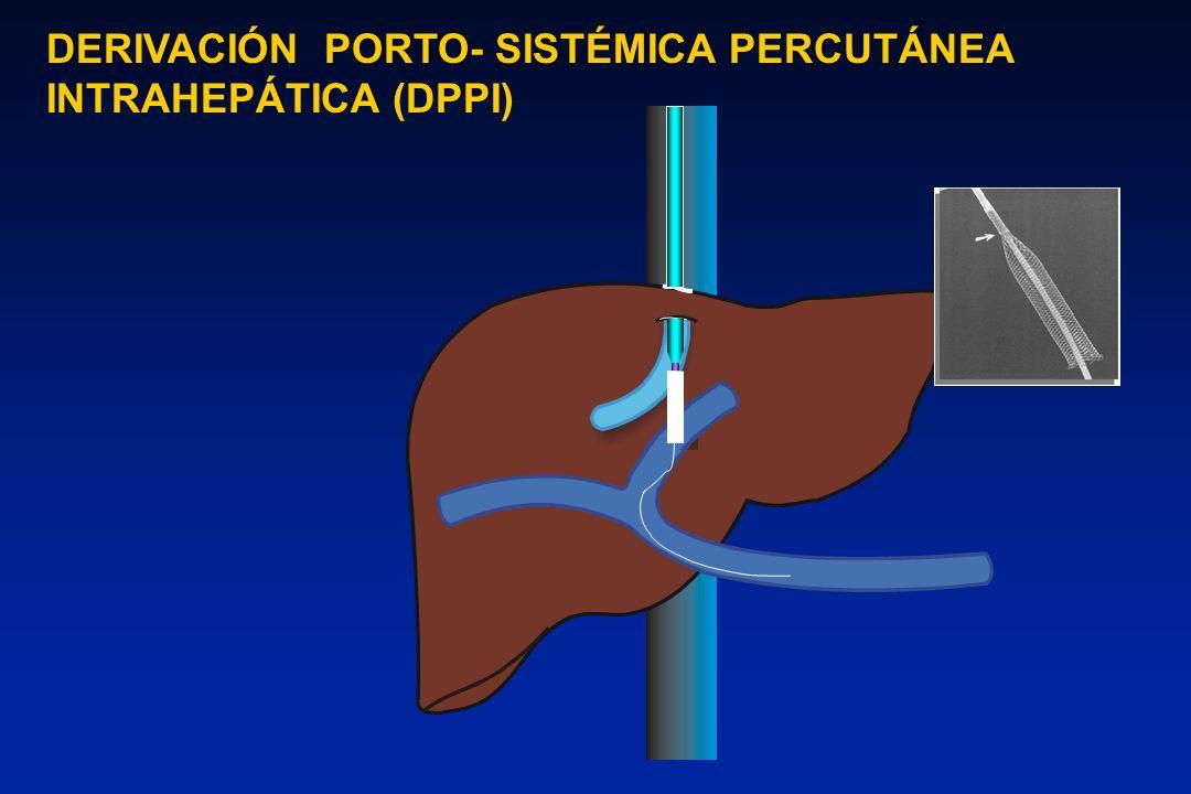 DERIVACIÓN PORTO- SISTÉMICA PERCUTÁNEA INTRAHEPÁTICA (DPPI)