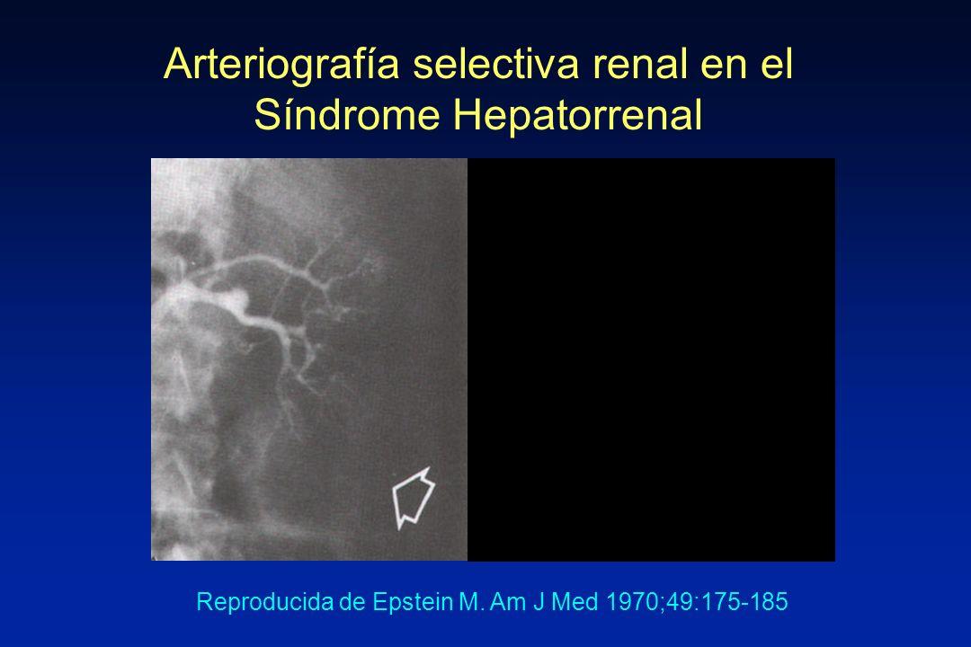 Arteriografía selectiva renal en el Síndrome Hepatorrenal