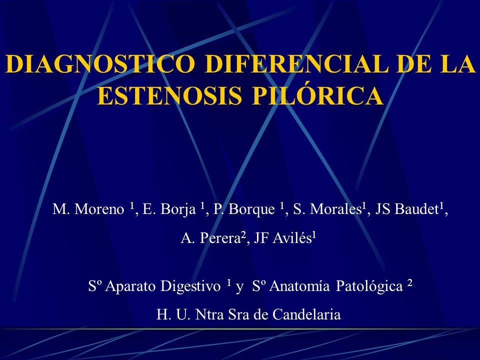 DIAGNOSTICO DIFERENCIAL DE LA ESTENOSIS PILÓRICA