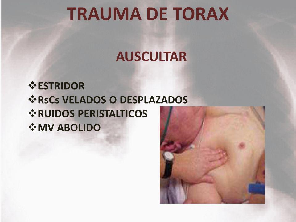 TRAUMA DE TORAX AUSCULTAR ESTRIDOR RsCs VELADOS O DESPLAZADOS