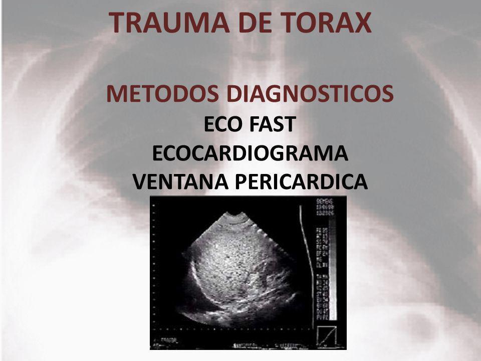 TRAUMA DE TORAX METODOS DIAGNOSTICOS ECO FAST ECOCARDIOGRAMA