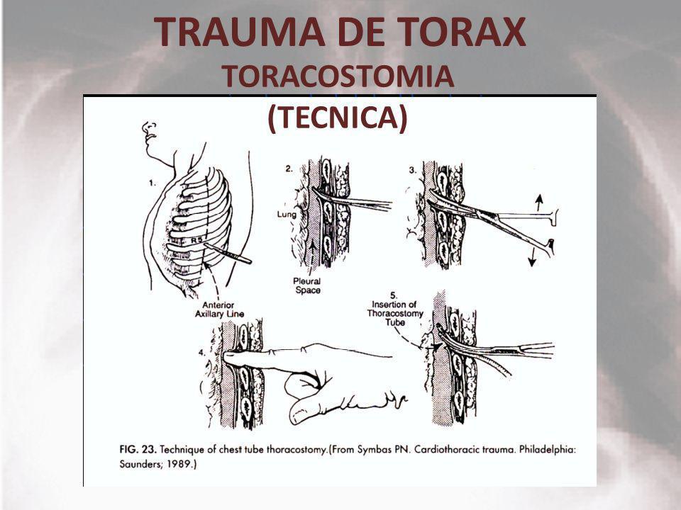 TORACOSTOMIA (TECNICA)