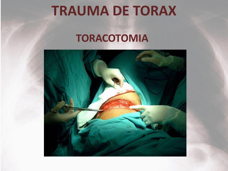 TRAUMA DE TORAX TORACOTOMIA