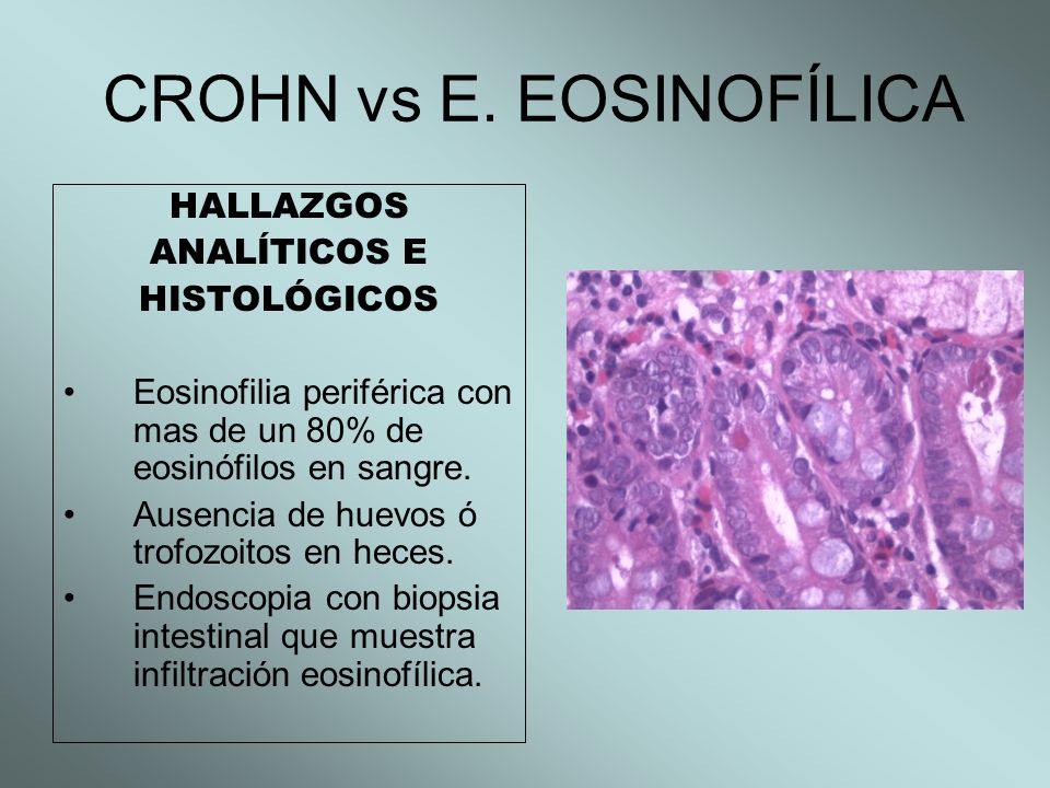 CROHN vs E. EOSINOFÍLICA