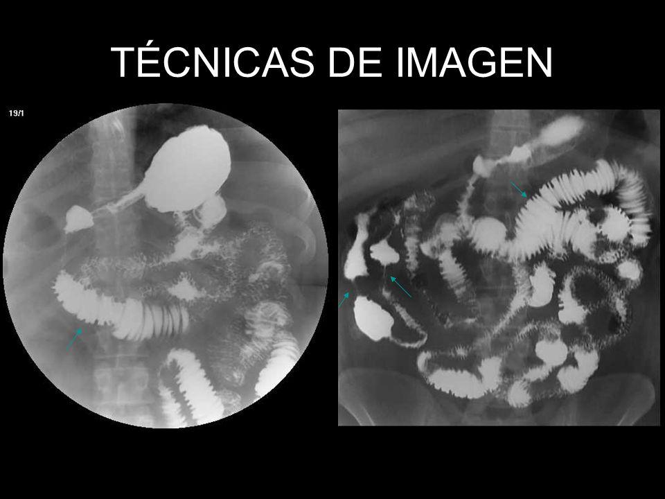 TÉCNICAS DE IMAGEN