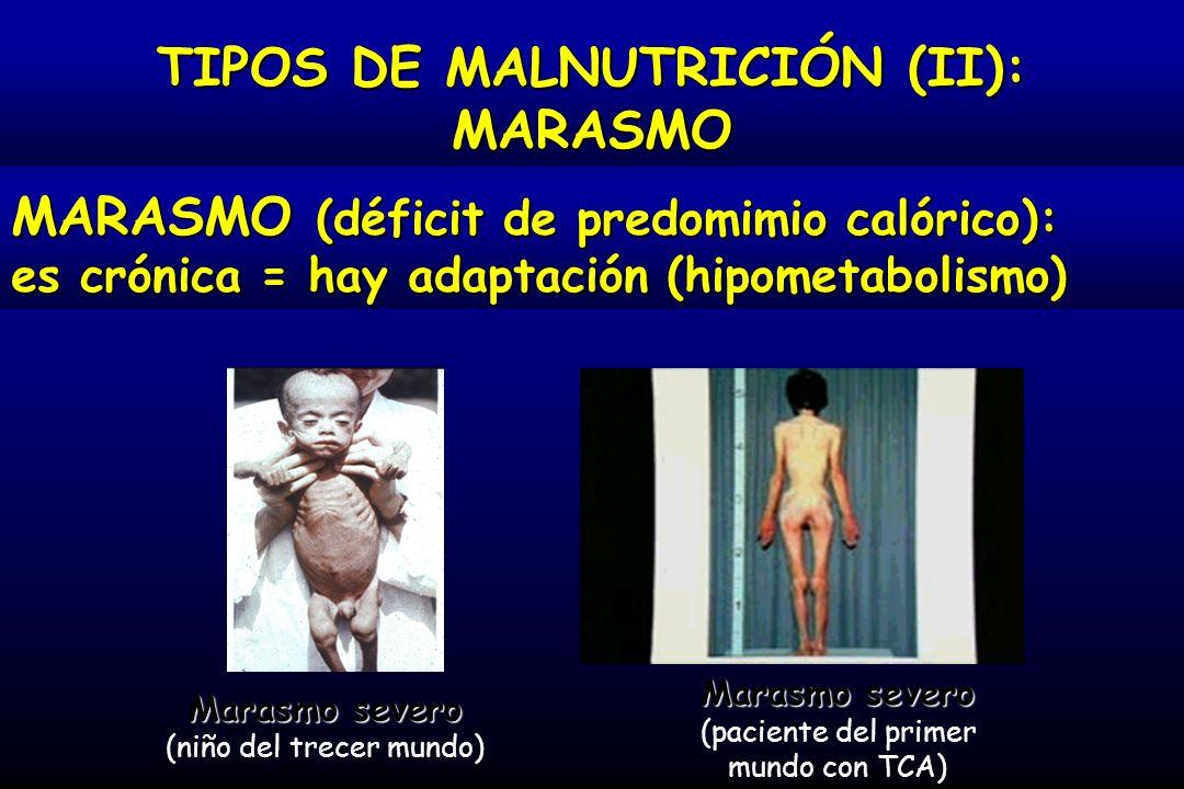 TIPOS DE MALNUTRICIÓN (II):