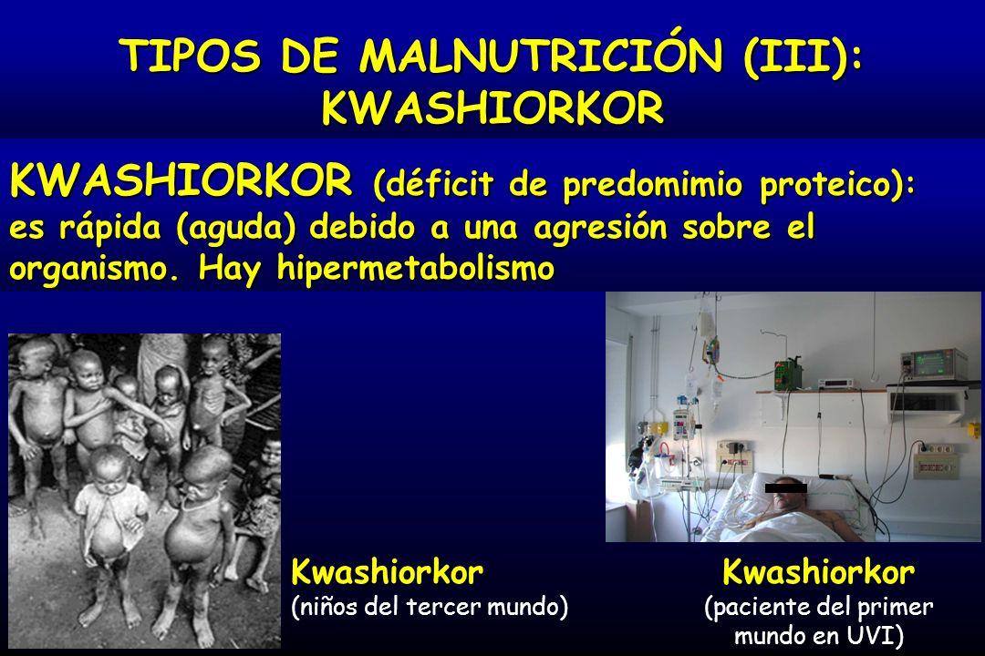 TIPOS DE MALNUTRICIÓN (III):