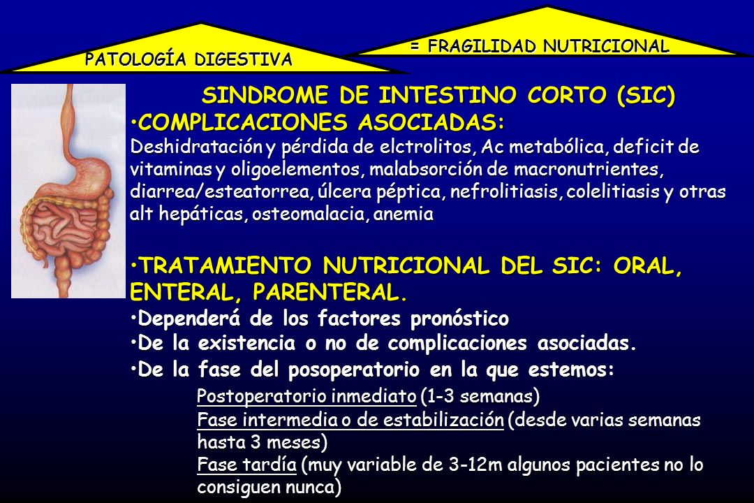 SINDROME DE INTESTINO CORTO (SIC)