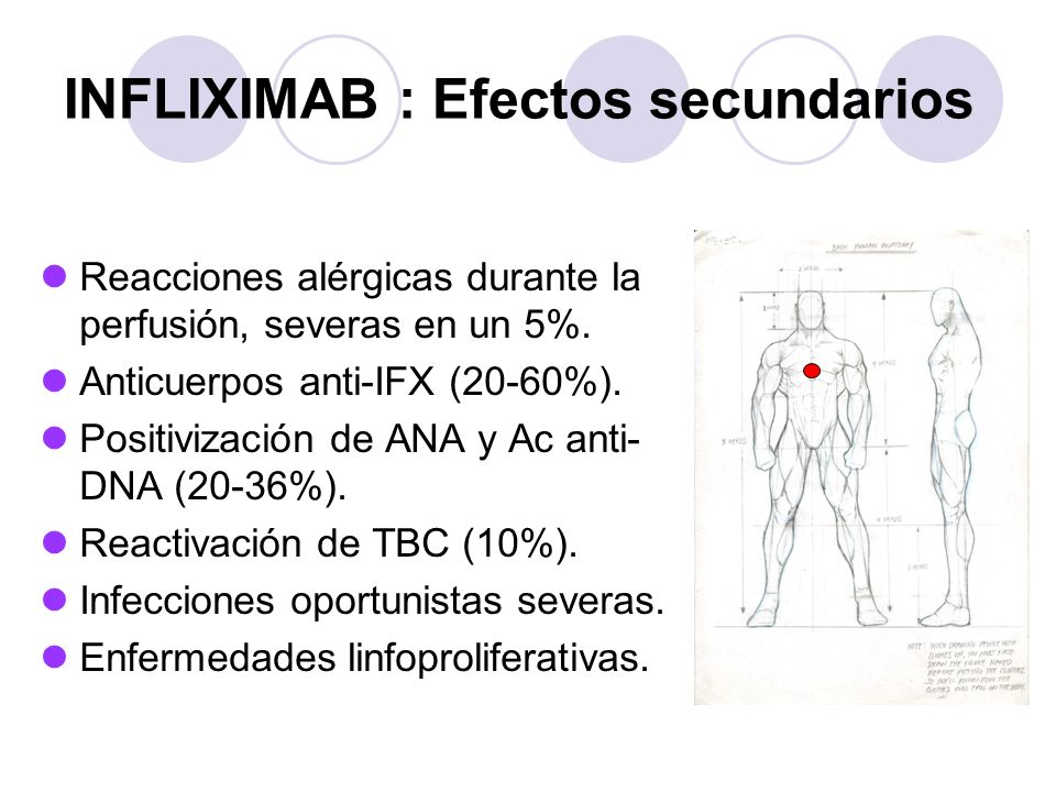 INFLIXIMAB : Efectos secundarios